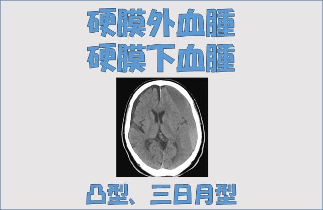と は 硬 膜 血腫 下 慢性硬膜下血腫の診断・症状・治療 [脳・神経の病気]