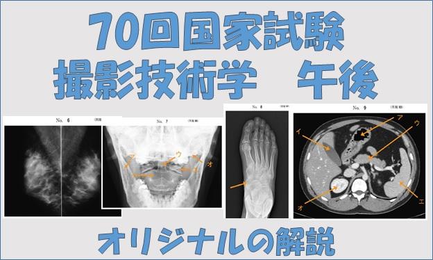 放射線 技師 試験 診療 国家